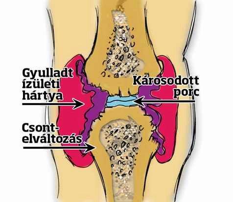 csont és ízületi betegségek deformációja