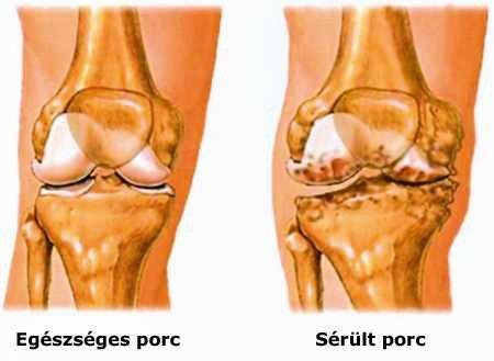 vírus és fájdalom a csontokban és ízületekben fáj a könyökízületek